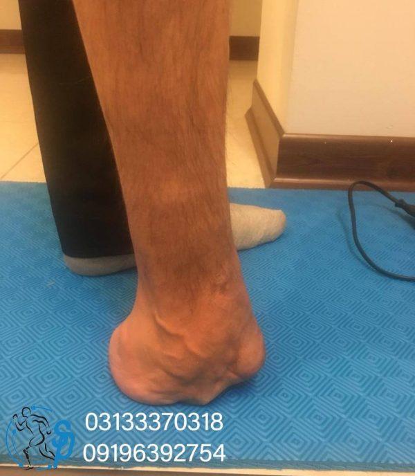 پای مصنوعی